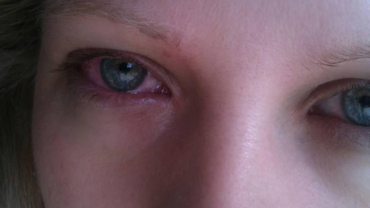 NAET-allergies-principes-de-sante.com