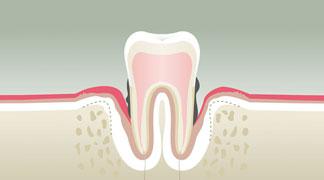dechaussement-dentaire